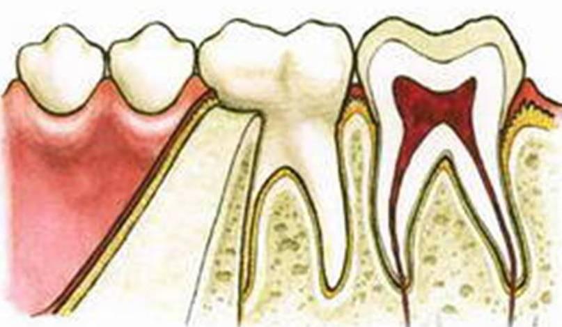 Корень зуба не до конца удалили